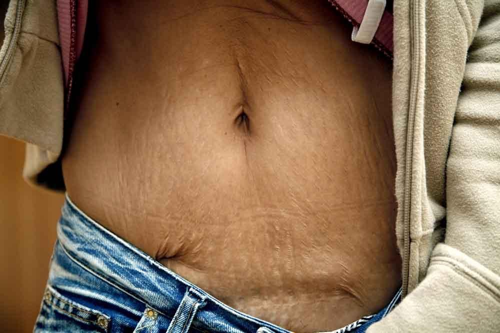 Как похудеть в домашних условиях народными средствами