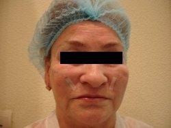 нитевая поддяжка лица после процедуры