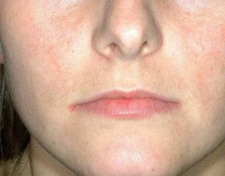 Лечение акне паломар lux v Фотоомоложение Красная улица Чебоксары