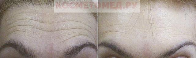 морщина на лбу фото до и после комплексной процедуры