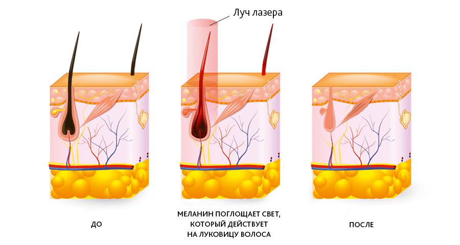 Суть метода удаления волос диодным лазером