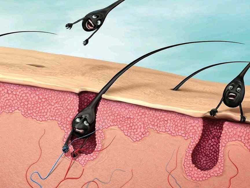 Комплексное обследование и современные методы лечения выпадения волос