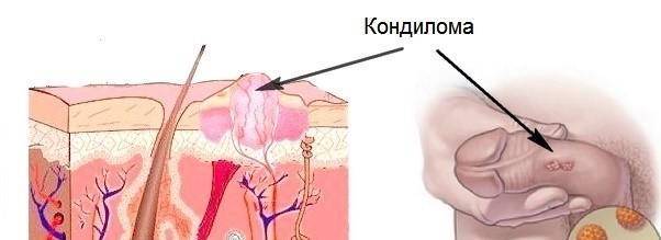 Etiologia cancerului de col uterin