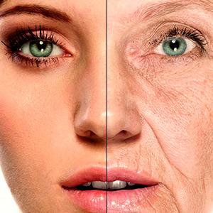 Биоревитализация и биомоделирование кожи. Препарат Профайло (Profhilo).