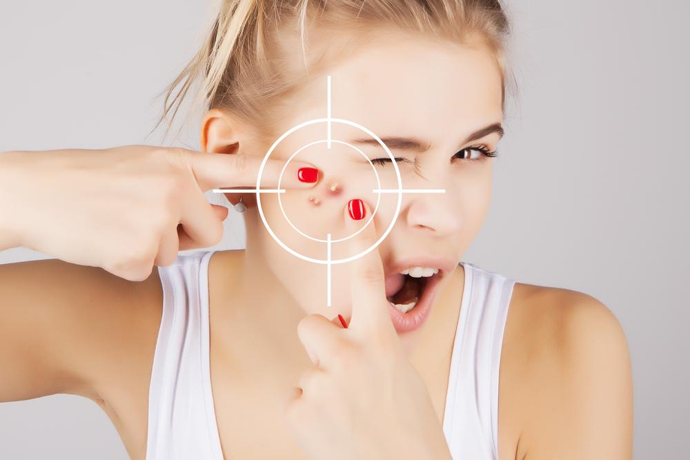 Лечение акне (прыщей, угрей) на лице у подростков