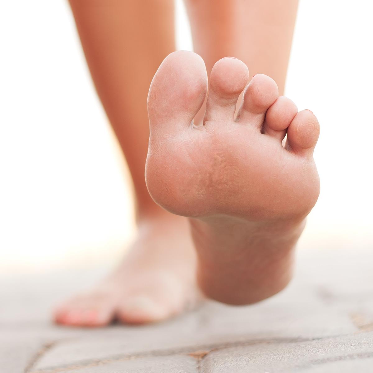 Лечение гипергидроза ног (стоп)