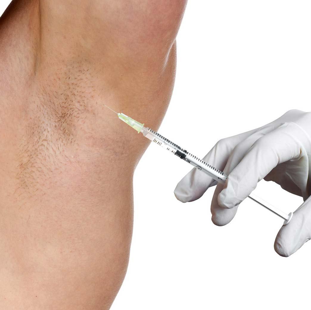 Лечение гипергидроза Ботоксом и Диспортом