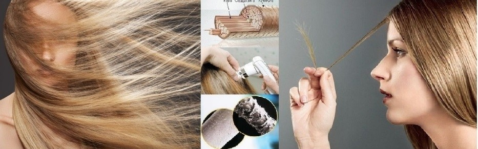 Диагностика выпадения волос и заболеваний кожи головы