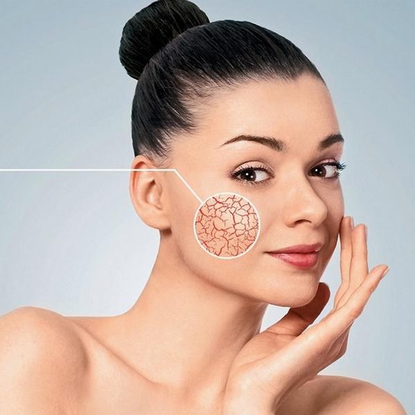 Удаление, лечение купероза на лице